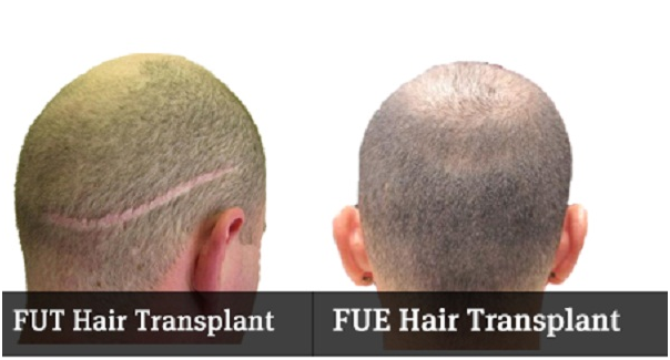 Hair Transplant in Karachi